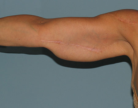 Arm Liposuction After