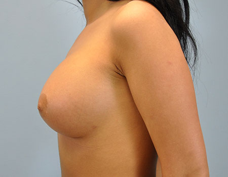 Breast Augmentation Case