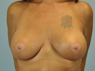 Breast Augmentation After View