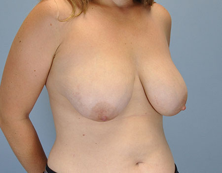 Breast Lift Case
