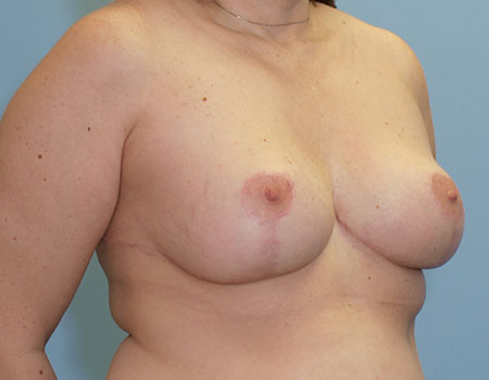 Breast Reduction Case