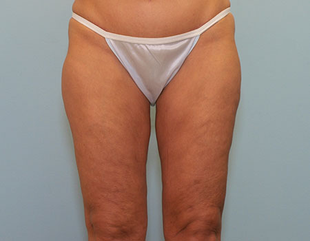 Thigh Vaser Case
