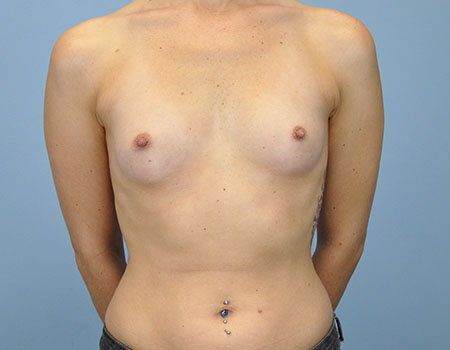 Breast Augmentation Before View