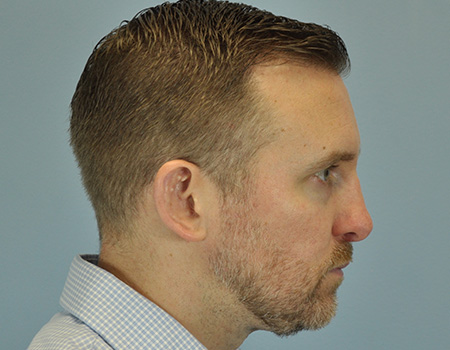 Rhinoplasty Patient of Dr. Vanek