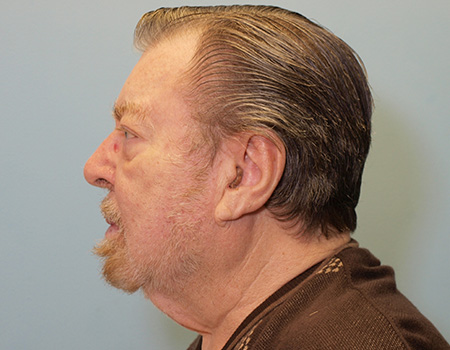 Neck Lift Patient of Dr. Vanek