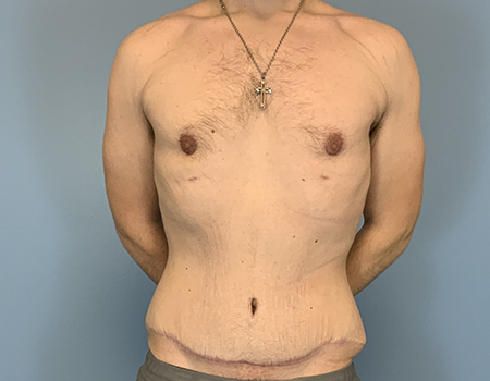 Abdomen Plastic Surgery Before and After
