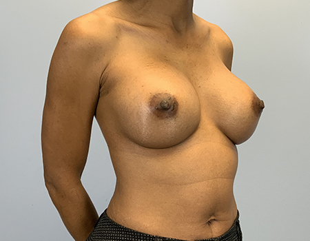 Breast Augmentation Plastic Surgery Before and After Photo